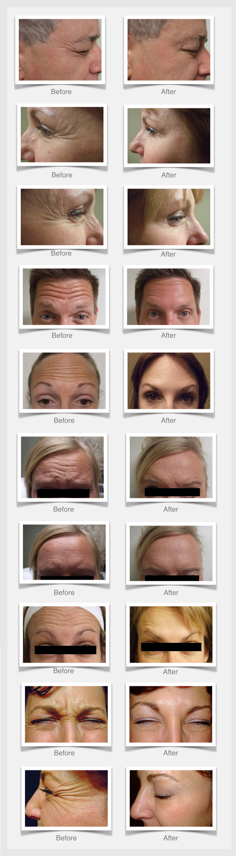 RefineMD aesthetic medical spa provides before and after photos of the results from Botox Cosmetic.
