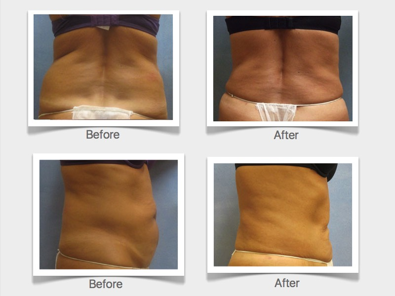 RefineMD offers lipo or liposuction and a successful testimonial including before and after photos.