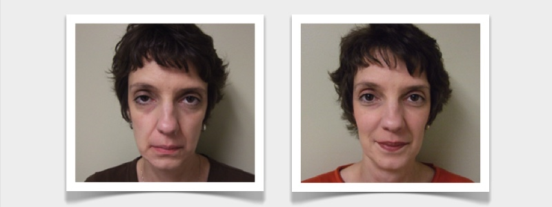 RefineMD helped client concerned about aging, bring back that youthful healthy appearance as recorded her successful testimonial including before and after photos.