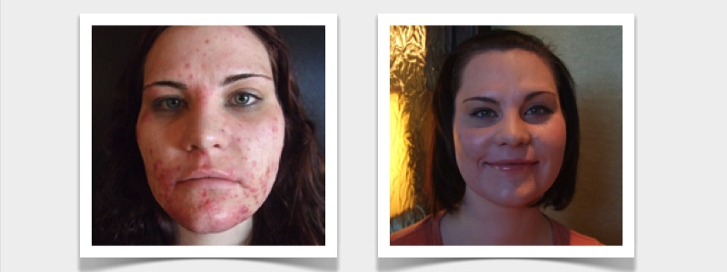 RefineMD helped Ashley Johnson, now the staff office manager at RefineMD, with her skin condition as recorded in her successful testimonial including before and after photos.