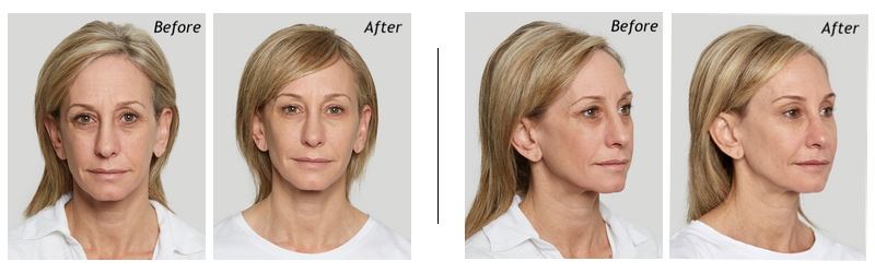 The before and after results of the sculptra aesthetic treatments.