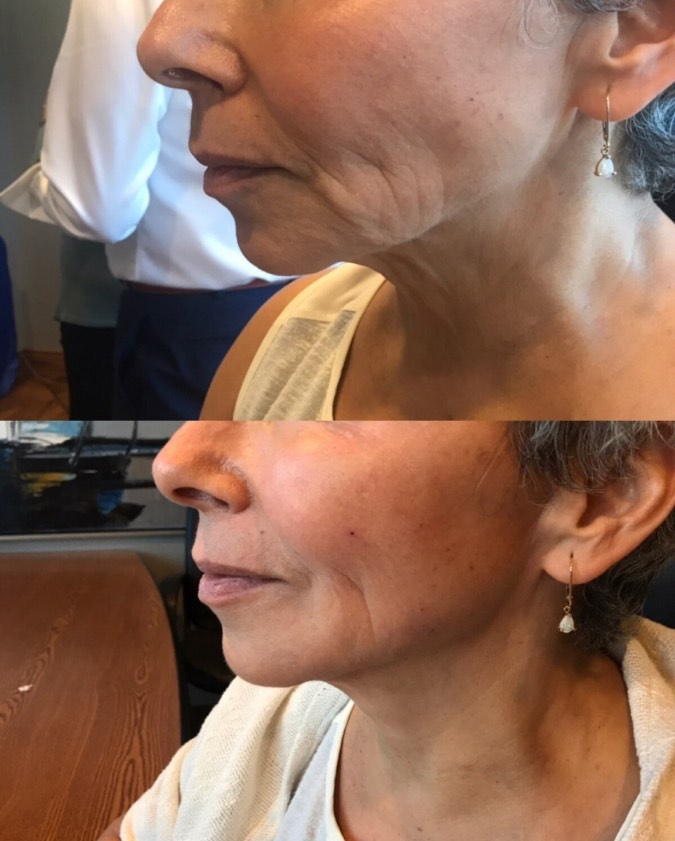 The before and after results of a PDO Thread Lift at Refine MD medical aesthetic spa of Northeast Wisconsin.