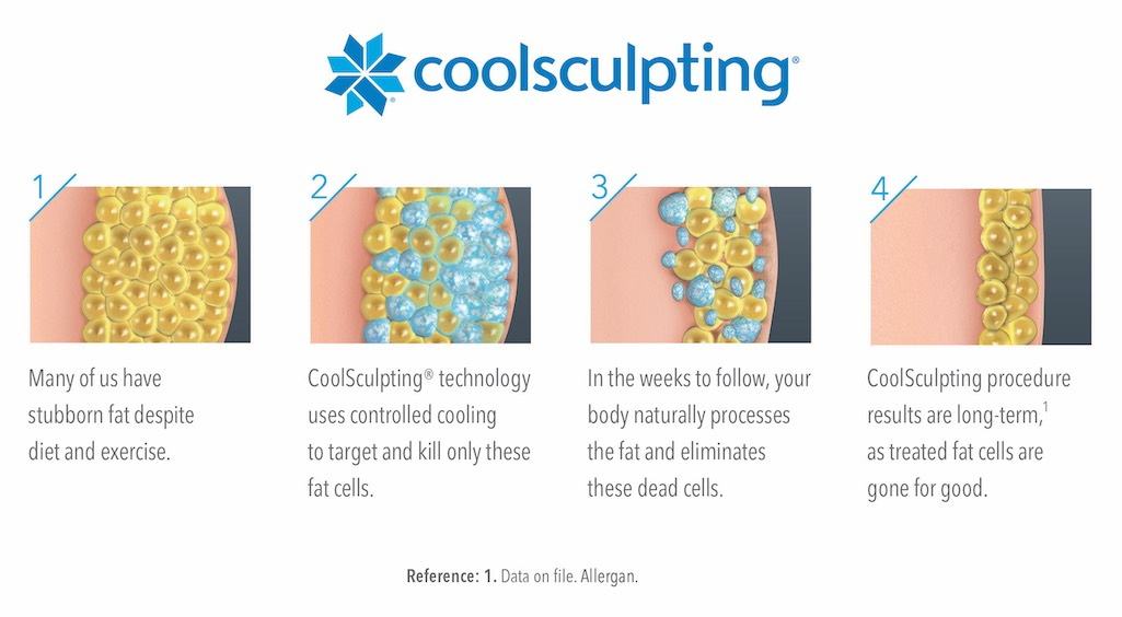 Graph showing how Coolsculpting works to reduce stubborn fat.