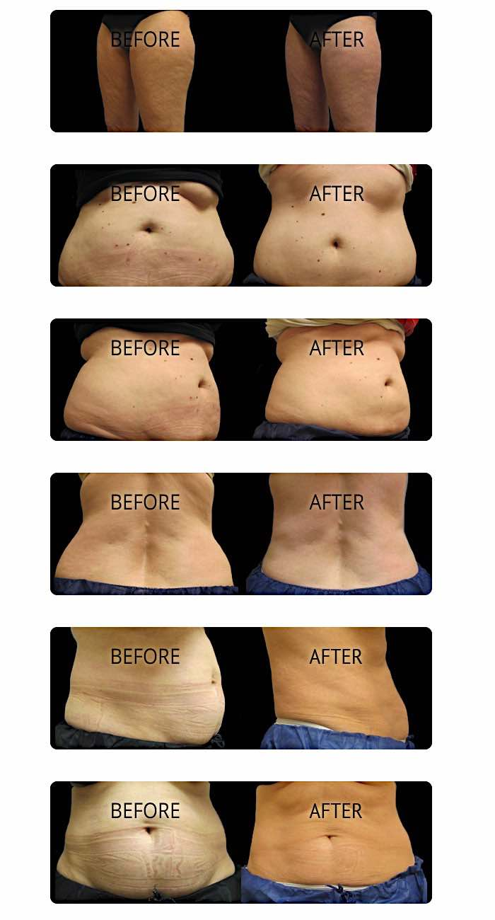 CoolSculpting results shown in real before and after photos from RefineMD in Appleton, Wisconsin.