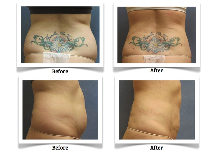 ProLipo has helped this RefineMD client with belly fat.