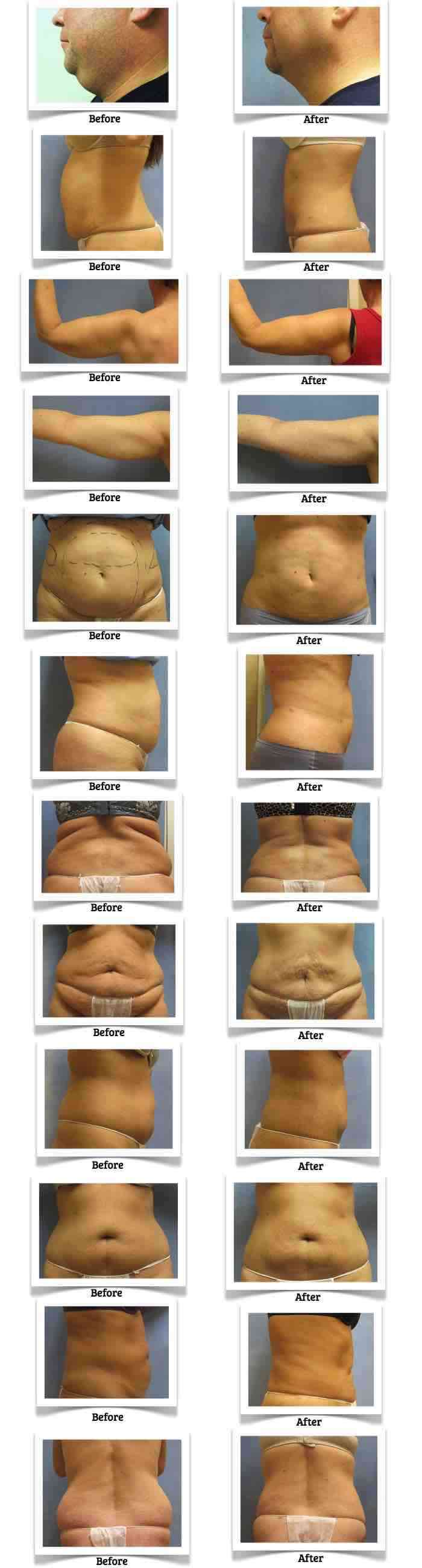 RefineMD before and after photos of clients that received the ProLipo Plus laser lipolysis or ProLipo Plus laser liposuction.