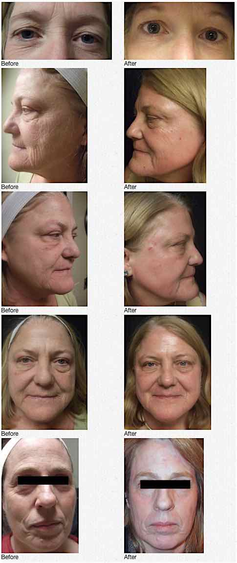 RefineMD offers Before and After Photos of the ProFractional Laser treatment.