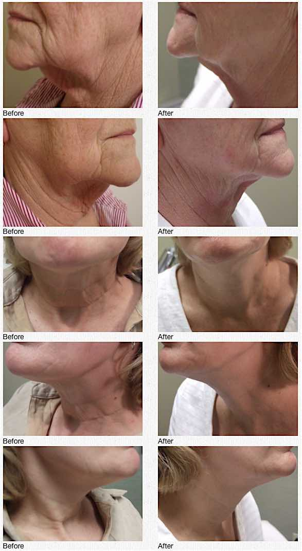 Refine MD aesthetic medical spa serving Menasha, Appleton, and the Northeast Wisconsin area, shows the results in the before and after images from Sciton SkinTyte treatments.