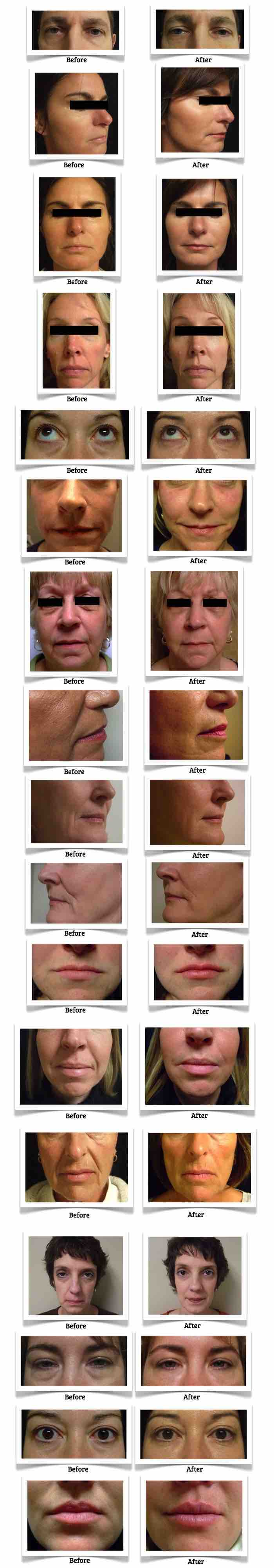Refine MD aesthetic medical spa serving Menasha, Appleton, and the Northeast Wisconsin area shows the results in the before and after images of clients given Juvederm XC dermal filler.